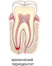 chronical_periodontitis